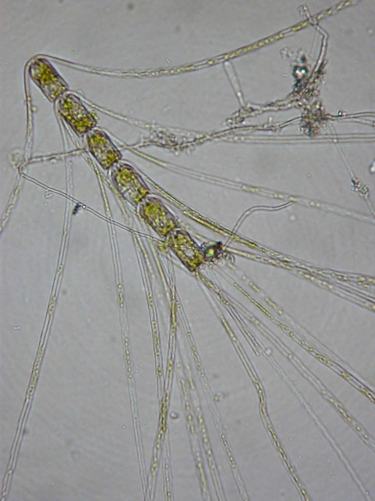Chaetoceros convolutus
